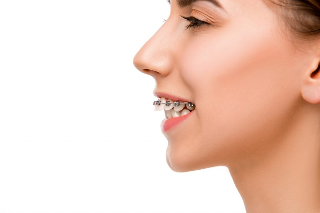 batıkent-ortodonti-diş-teli